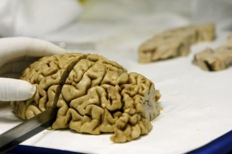 Universidad-de-EEUU-dice-ahora-que-cerebros-perdidos-se-destruyeron-en-2002